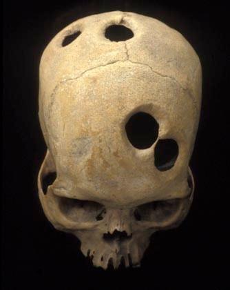 Crâne inca troué
